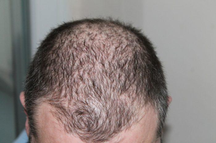 Utilizzo degli integratori per capelli